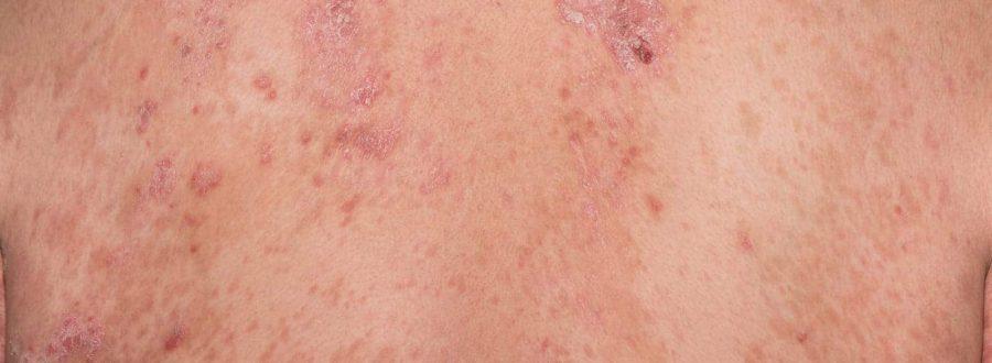 atopowe zapalenie skóry objawy, przyczyny leczenie