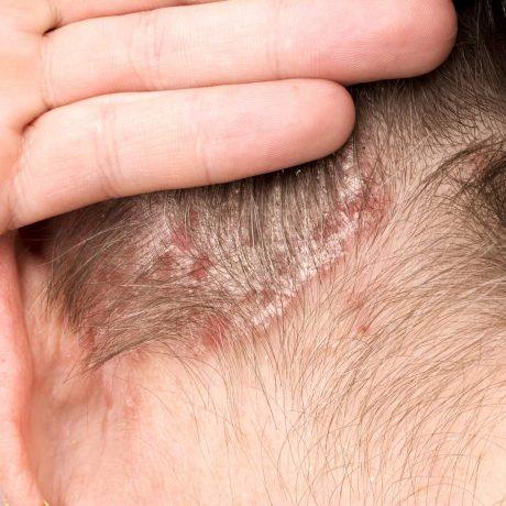 łuszczyca objawy leczenie przyczyny