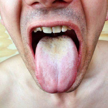 grzybica ogólnoustrojowa przyczyny leczenie objawy