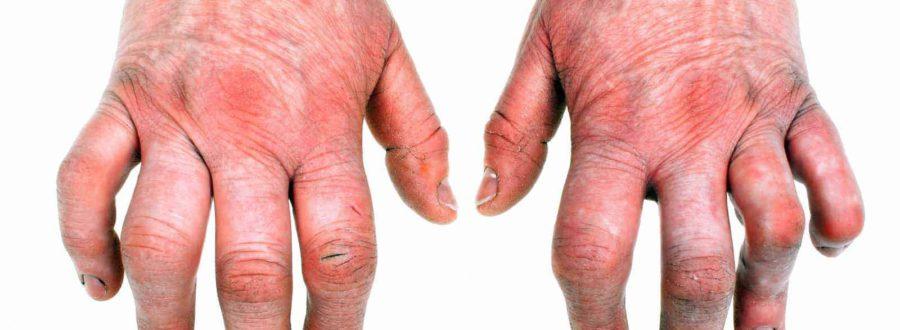 łuszczycowe zapalenie stawów objawy leczenie