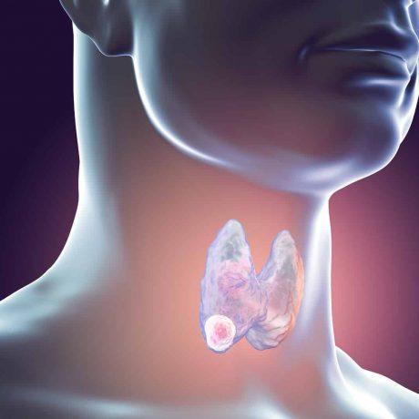 rak tarczycy objawy leczenie przerzuty