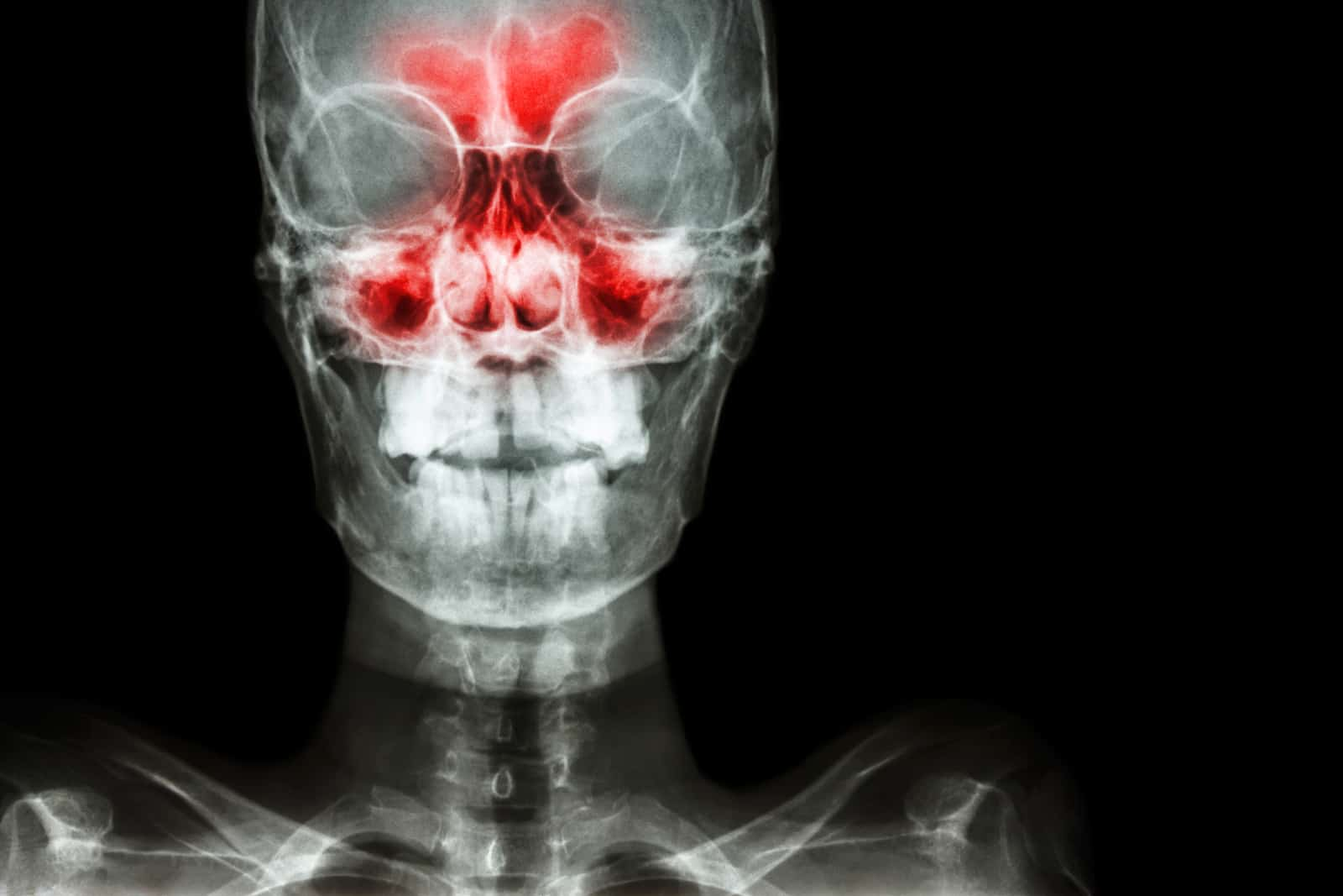 rodzaje zapalenia zatok - szczękowe, nosowe
