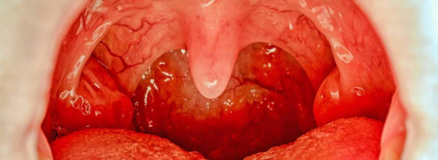 objawy anginy leczenie