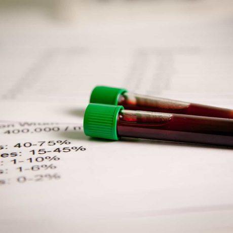 trójglicerydy normy badania obniżyć trójglicerydy