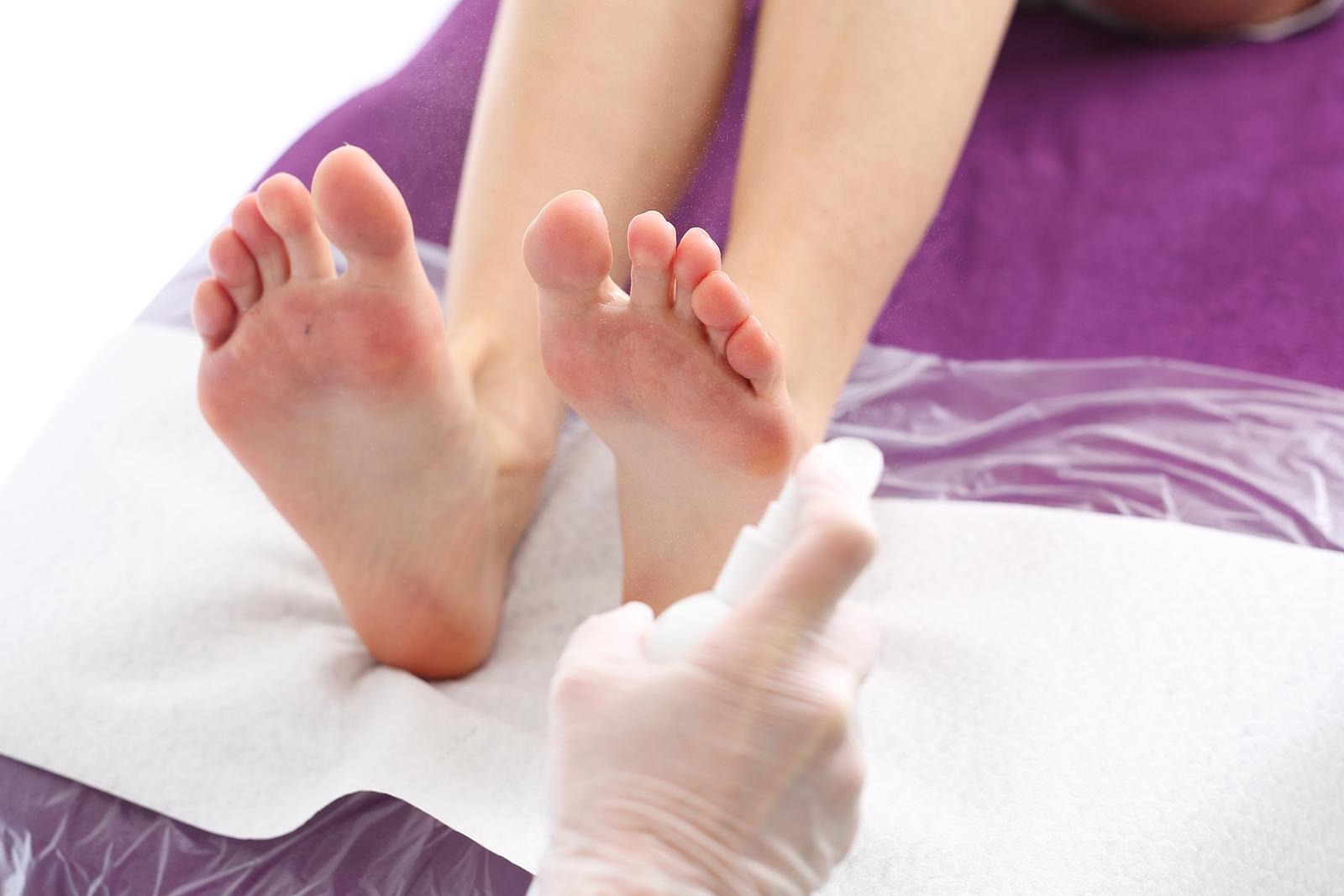grzybica skóry przyczyny objawy leczenie
