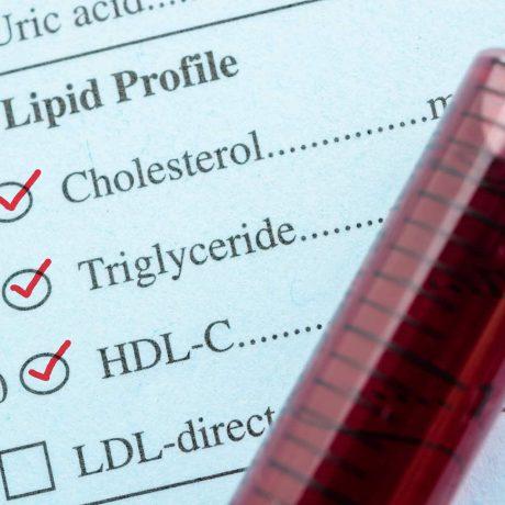 cholesterol hdl normy wysoki cholesterol hdl