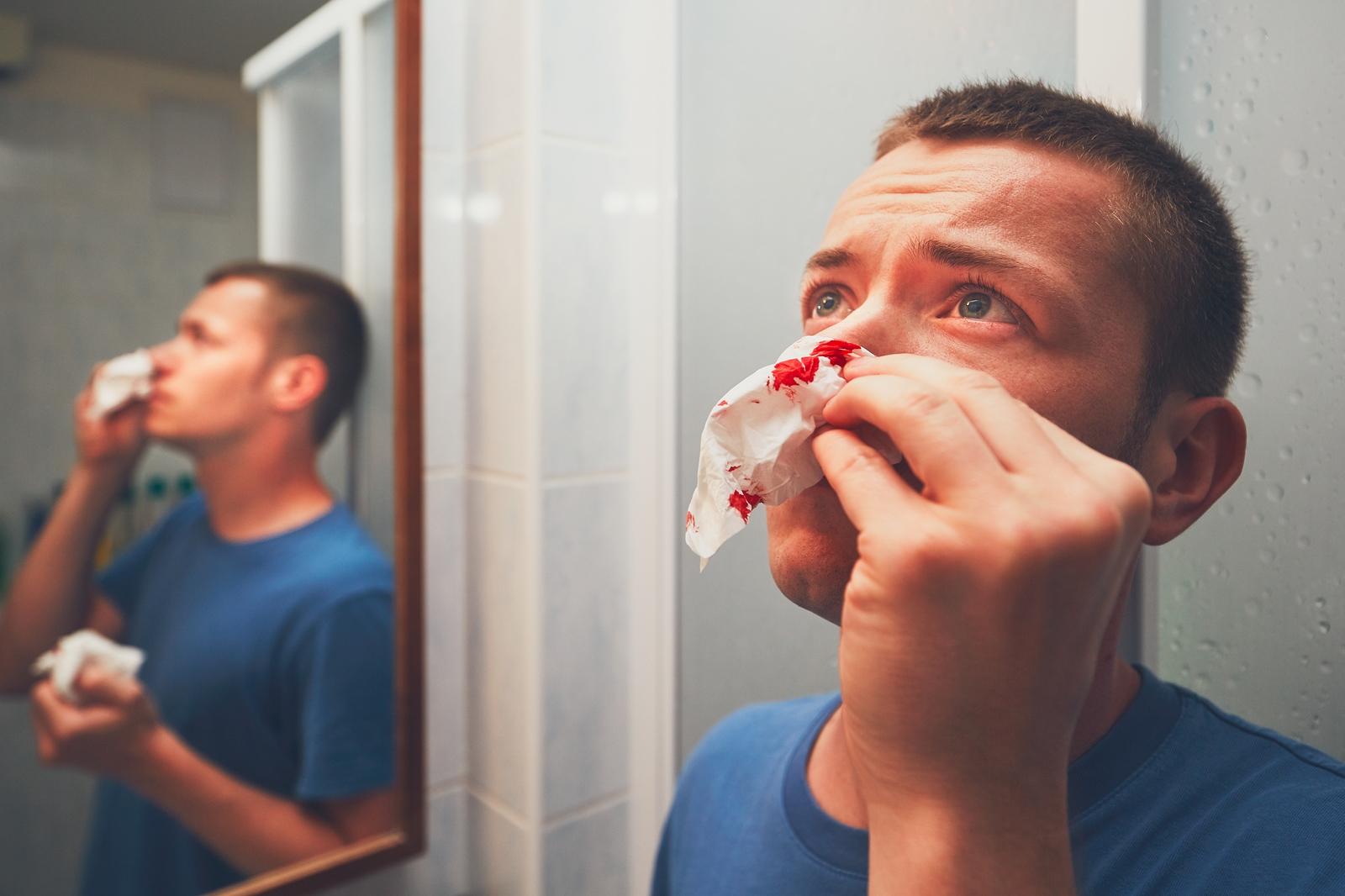 jak zatamować krwotok z nosa
