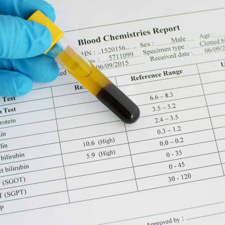 bilirubina test norma podwyższona bilirubina