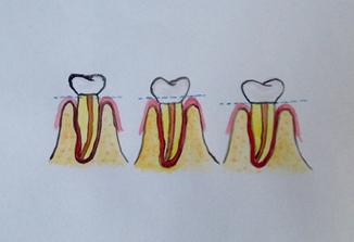korony zębowe
